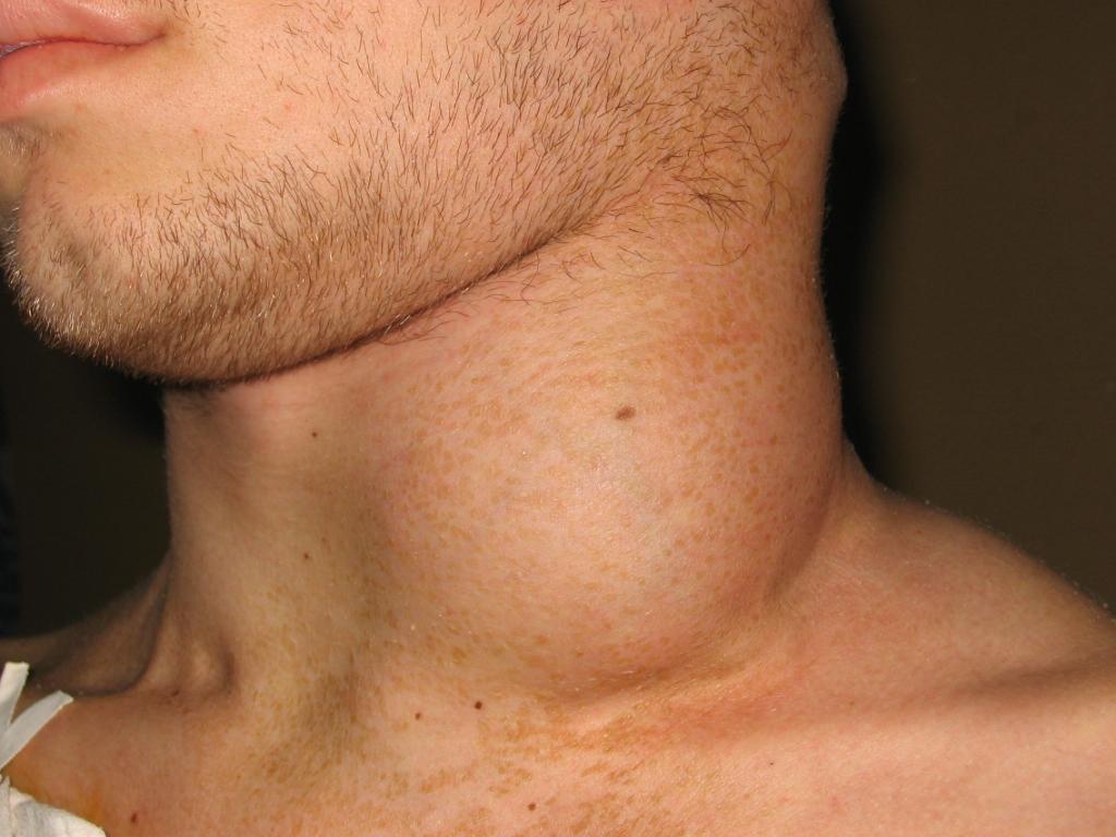 Неходжкинская лимфома у мужчины