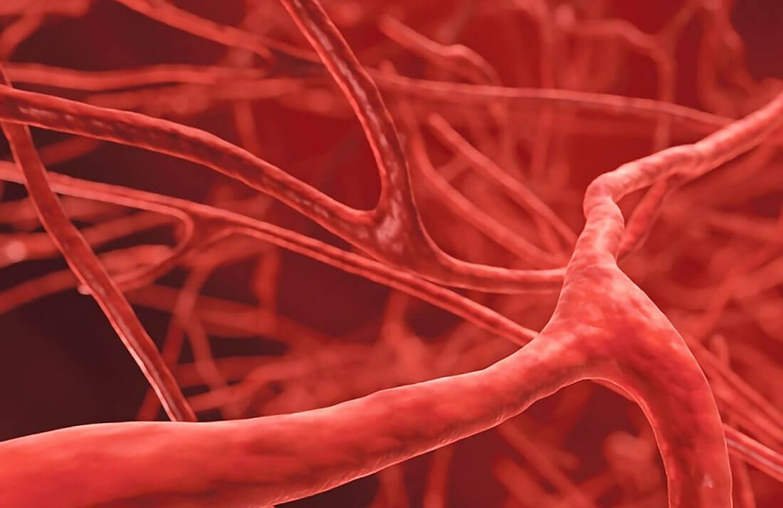 Симптомы и формы лимфангита лечение воспаления сосудов