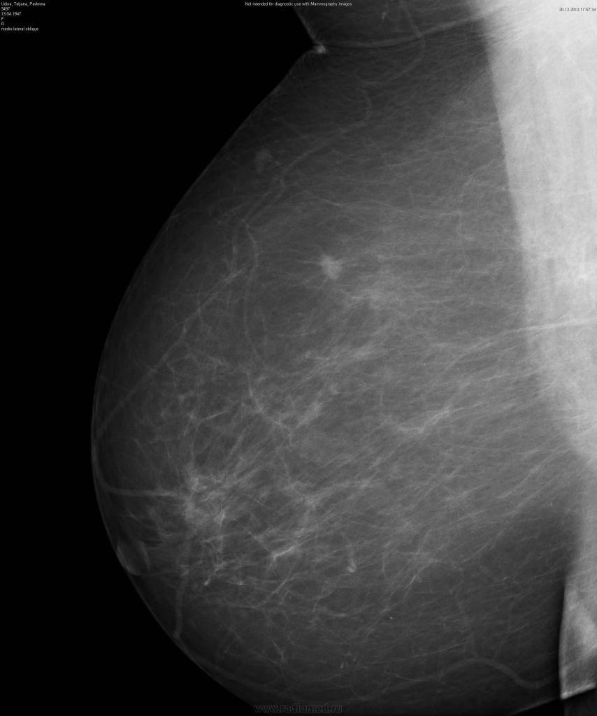 Интрамаммарный лимфоузел на маммографии