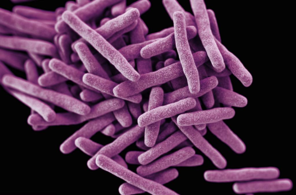 Туберкулезный лимфаденит: причины, симптомы и лечение