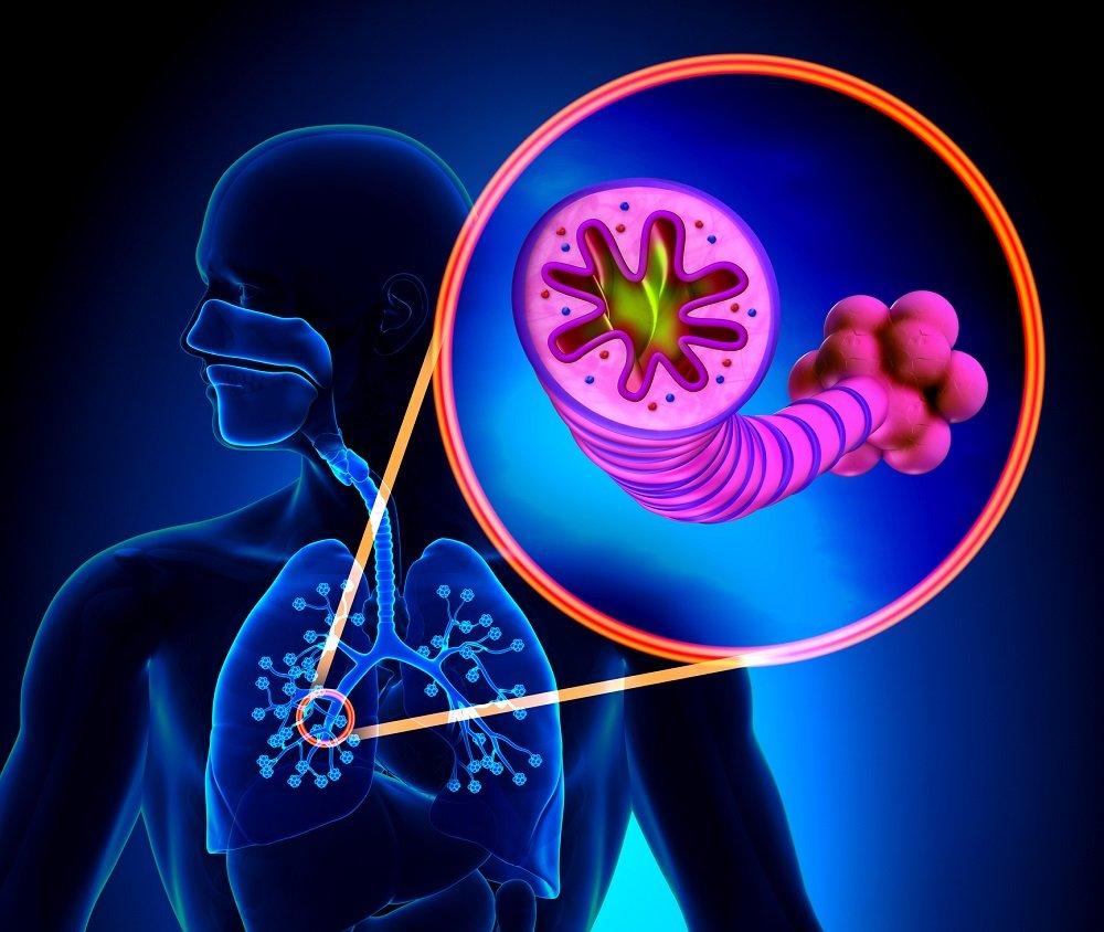 Лимфома легких: причины, классификация, симптомы, лечение, прогноз