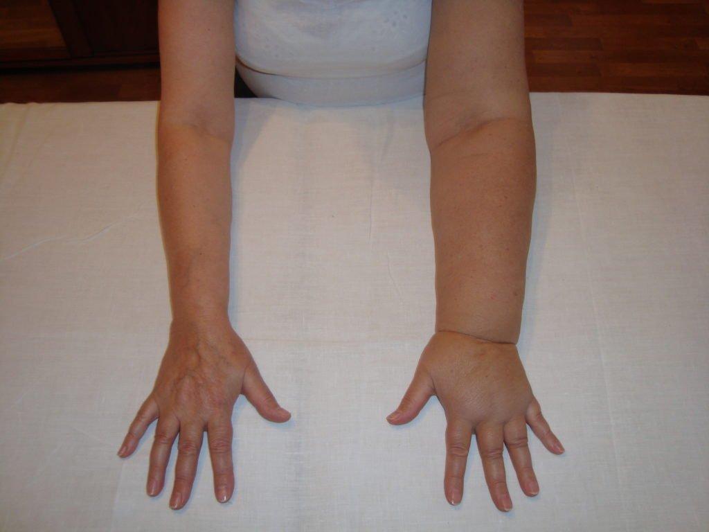 Лимфостаз левой руки