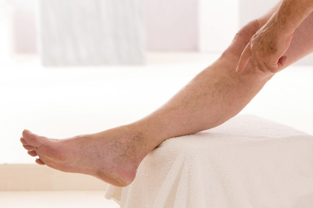 Воспаление лимфатических сосудов на ноге