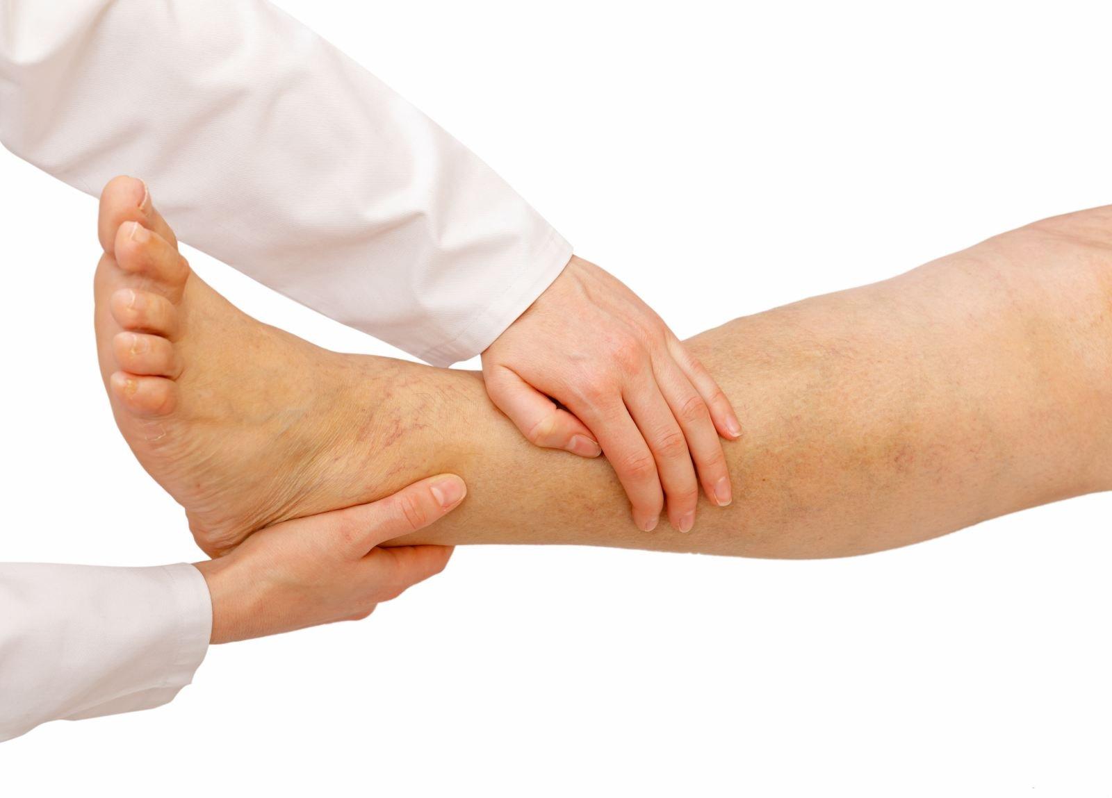 Лимфедема нижних конечностей: лечение и причины