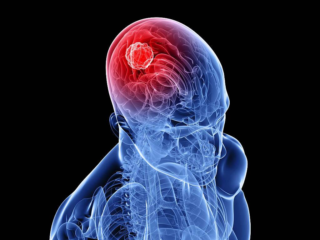 Лимфома головного мозга лечение