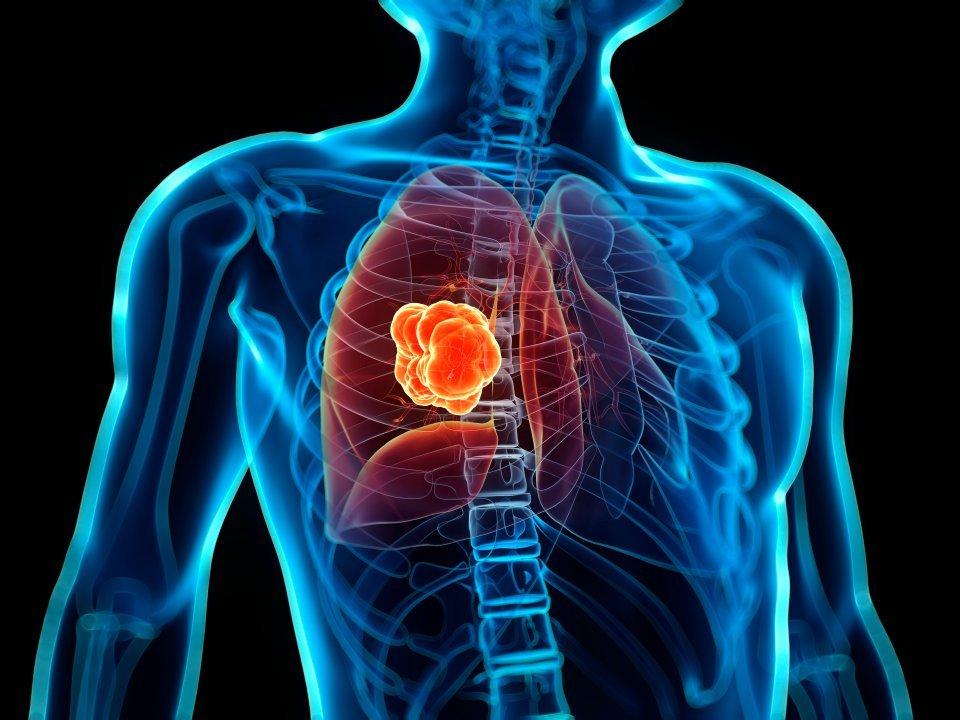 Причины проявления лимфаденопатии брюшной полости