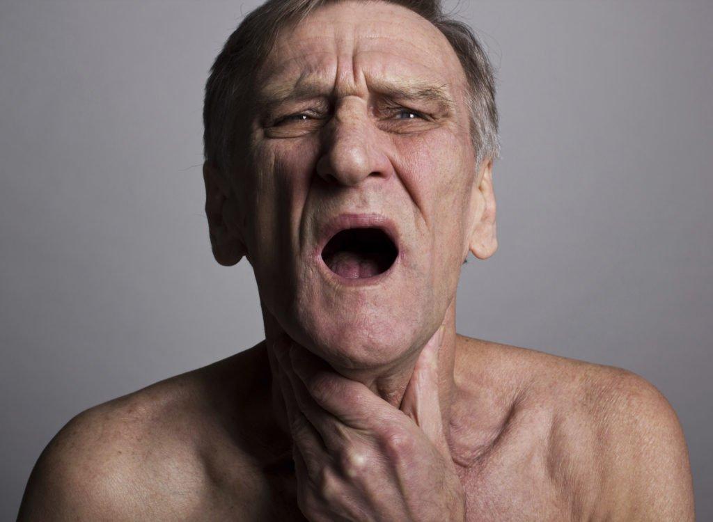 Фолликулярная лимфома: симптомы, что это такое, прогноз и лечение