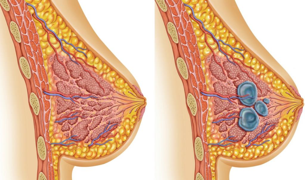 Интрамаммарный лимфоузел молочной железы