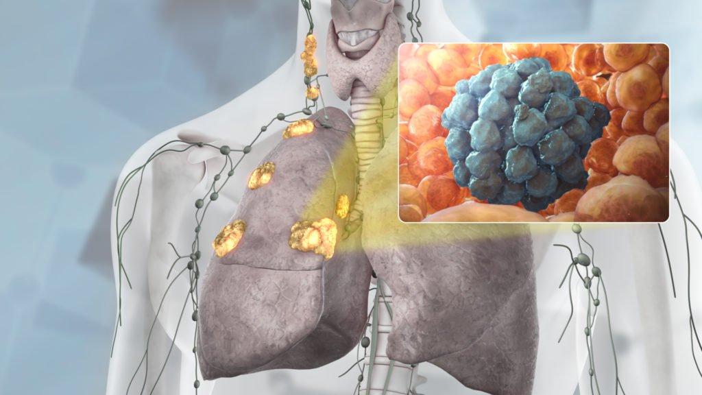 Лимфобластические опухоли