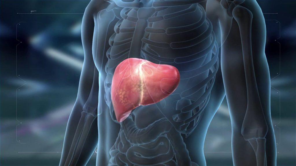 Что такое лимфаденопатия ворот печени и почему увеличиваются лимфоузлы?