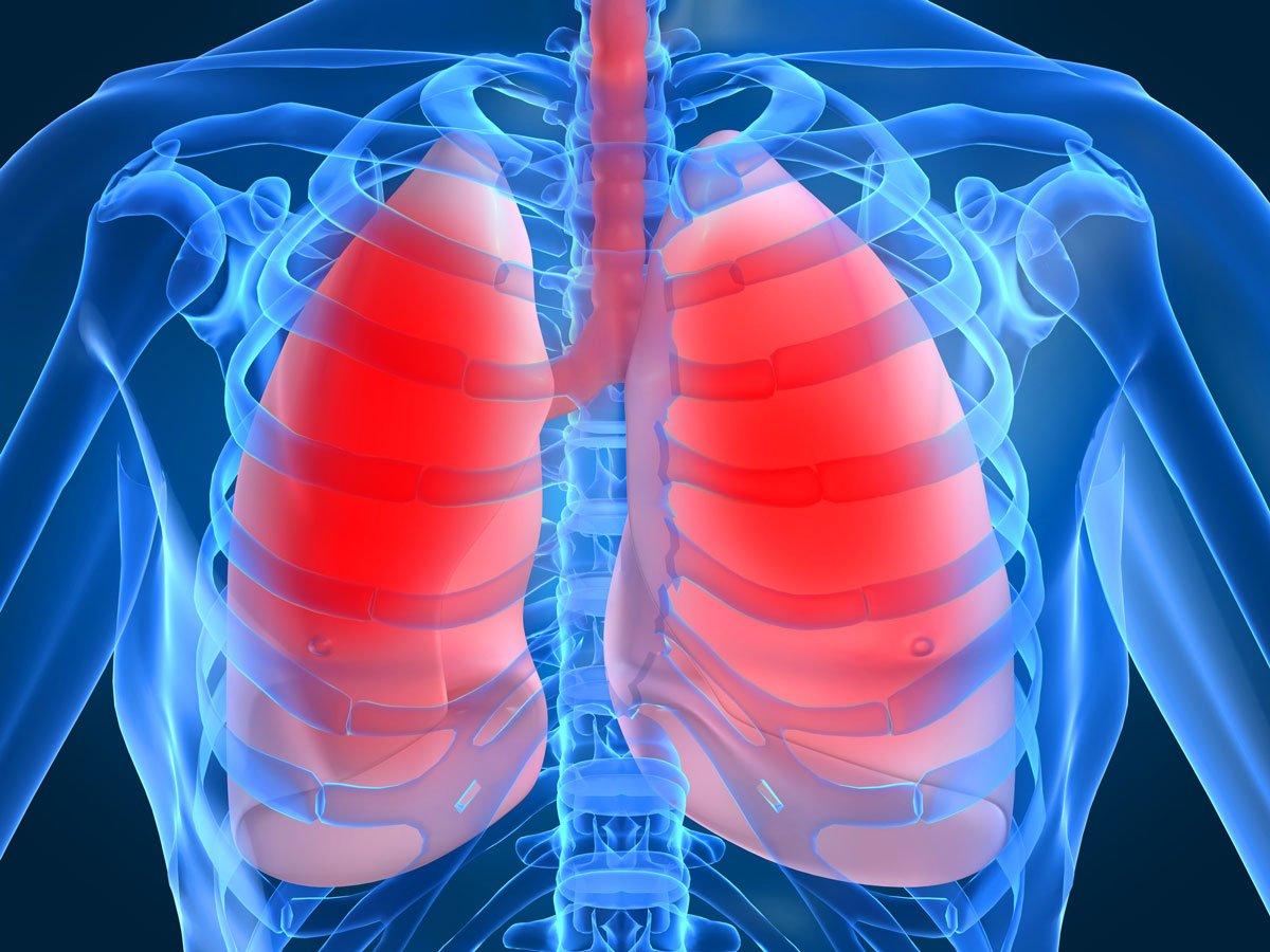 Возможные осложнения при туберкулезе лимфоузлов