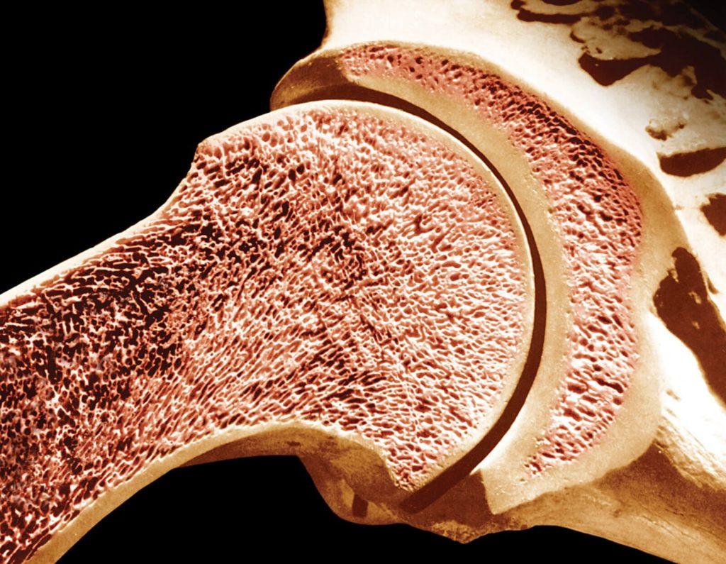 Аплазия костного мозга: что это такое и какими симптомами сопровождается