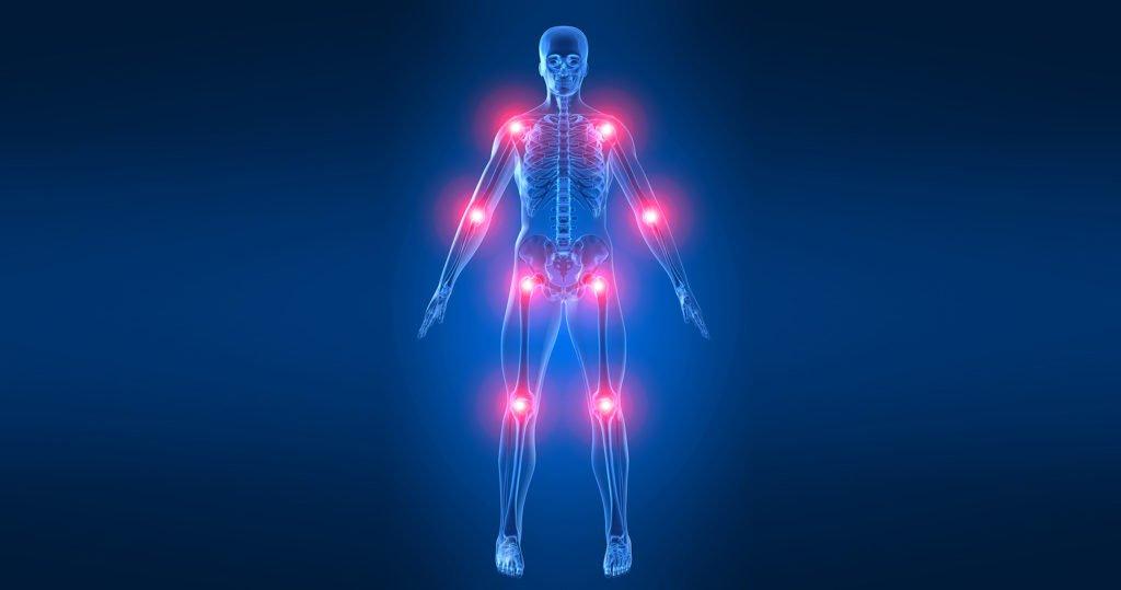 Инфаркт костного мозга: чем опасен и как проявляется?