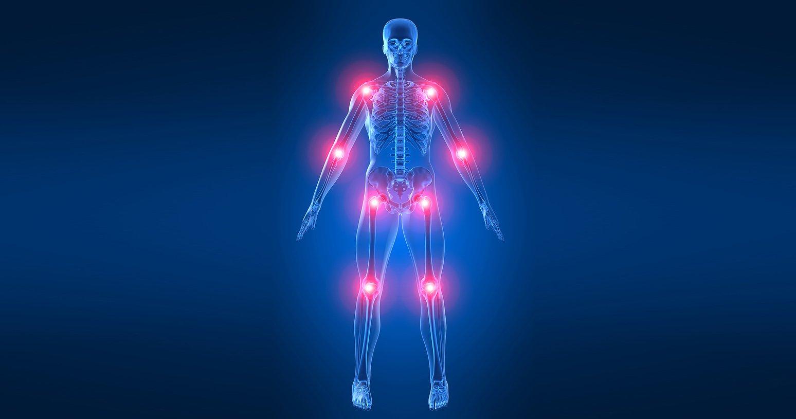 Что такое инфаркт большеберцовой кости