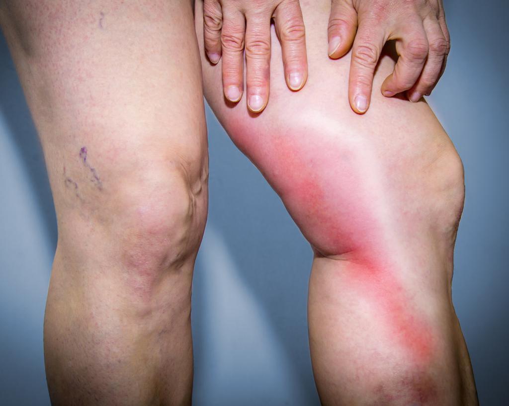 Тревожные симптомы и повод для обращения к врачу при воспалении подколенного лимфоузла