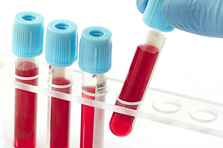 Анализ крови при увеличенных лимфоузлах