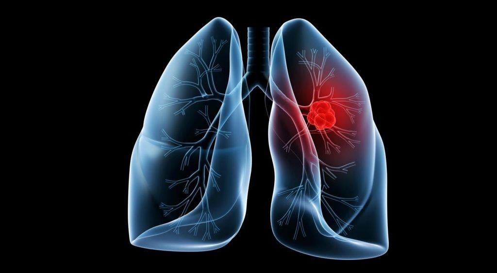 Ишемический некроз кости в следствие туберкулеза