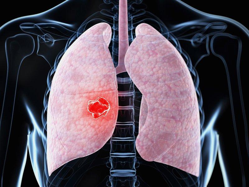 Увеличение внутригрудных лимфоузлов при пневмонии