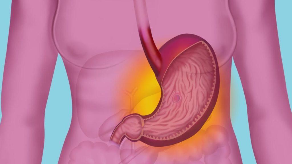 MALT-лимфома: причины возникновения, методы лечения и прогноз