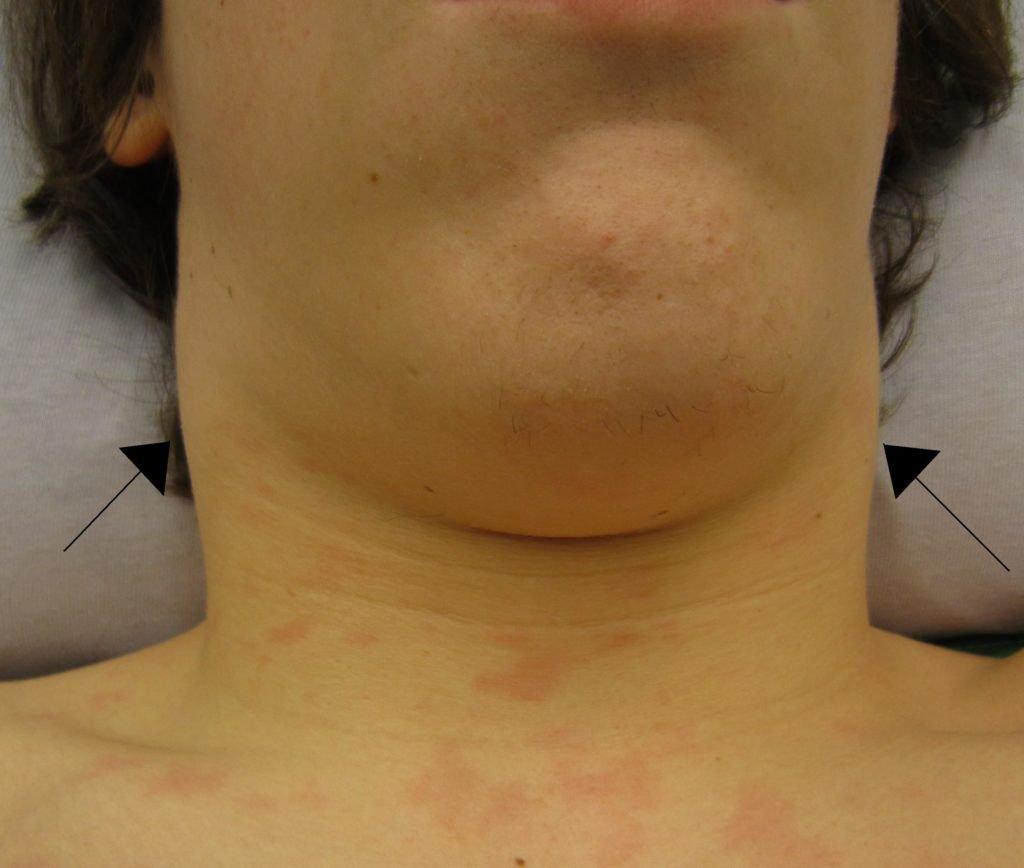 Лимфаденопатия при туберкулезе