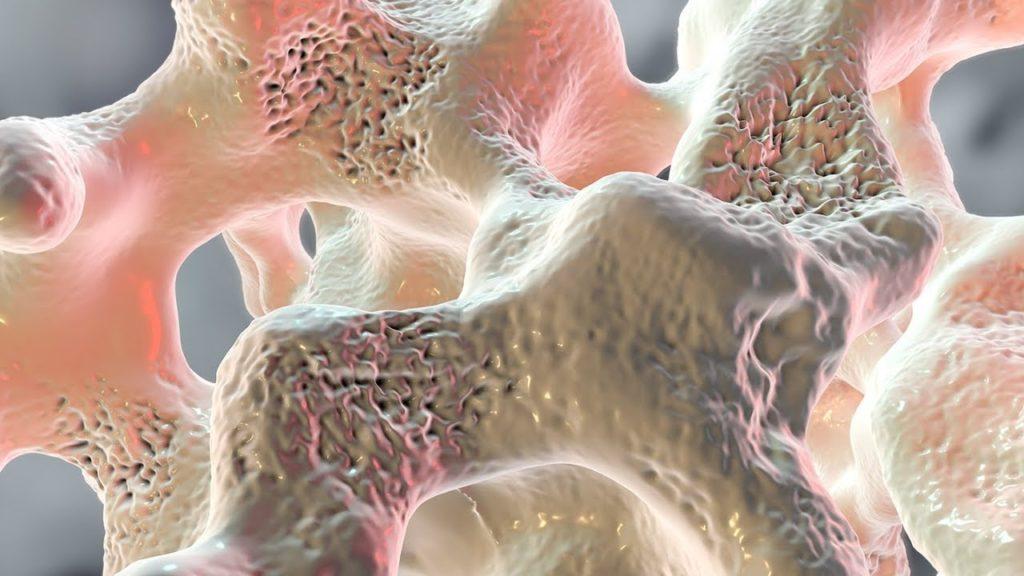 Инфекционныйотек костного мозга