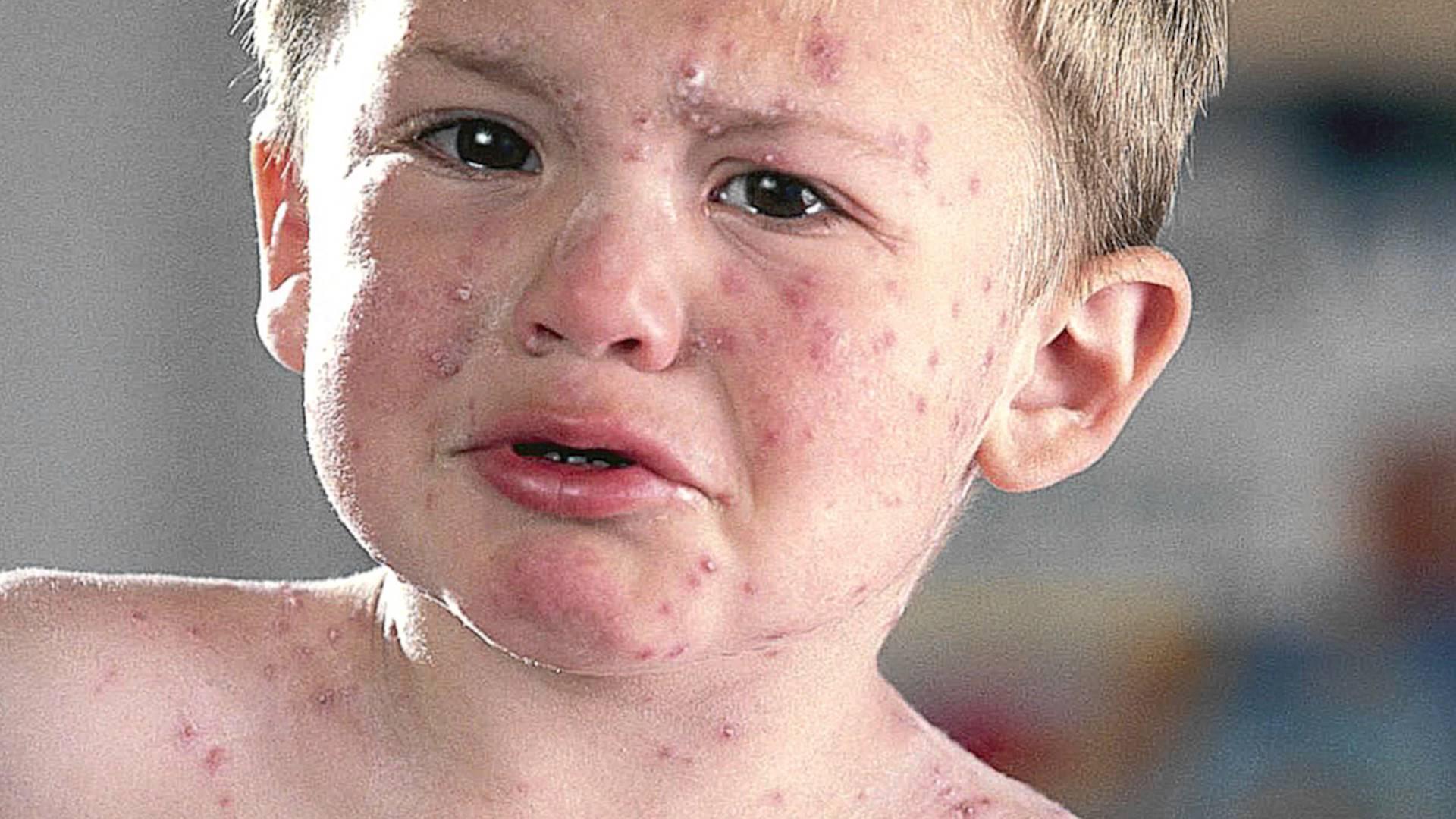 Симптомы воспаления лимфоузлов при ветрянке