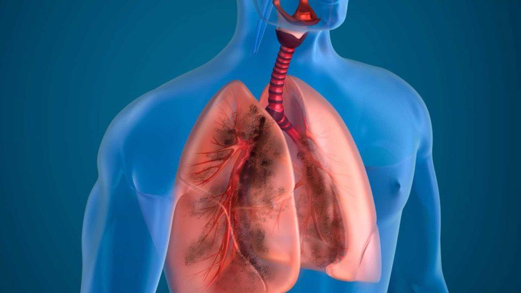 Воспаление лимфоузлов на фоне другого заболевания