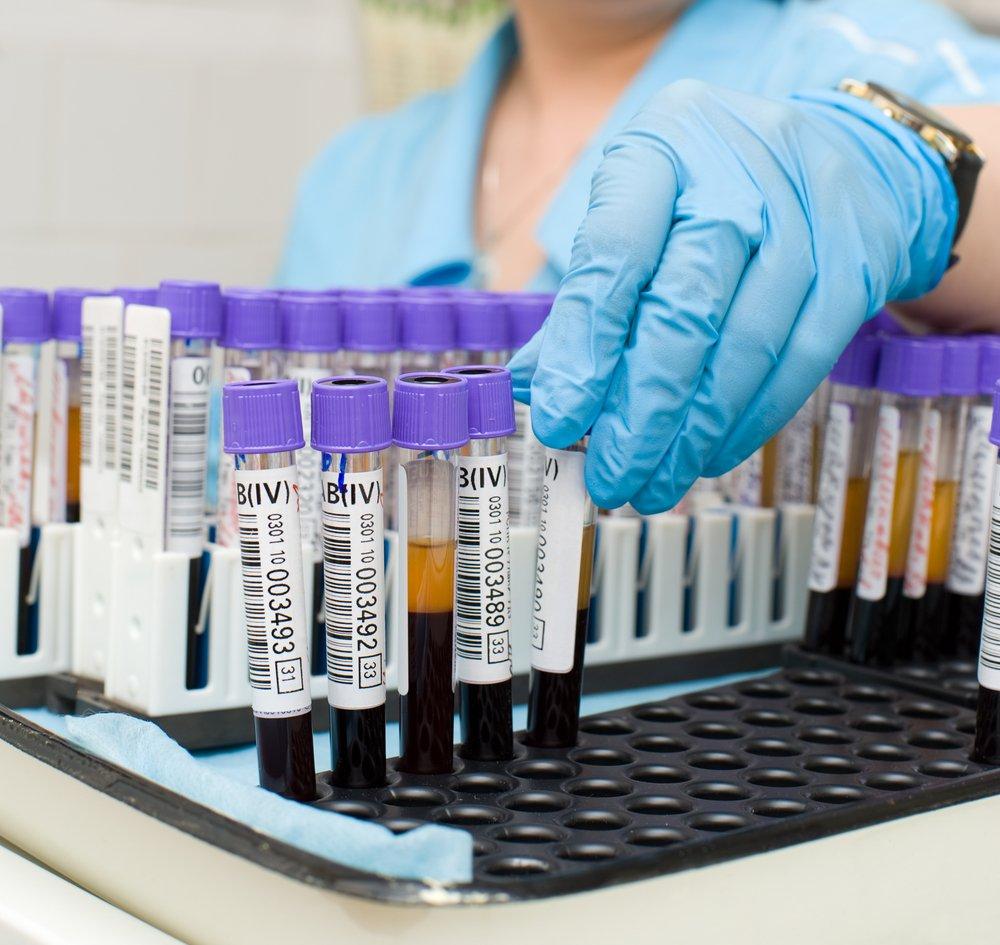 Диагностика лимфаденопатии подмышечных лимфоузлов
