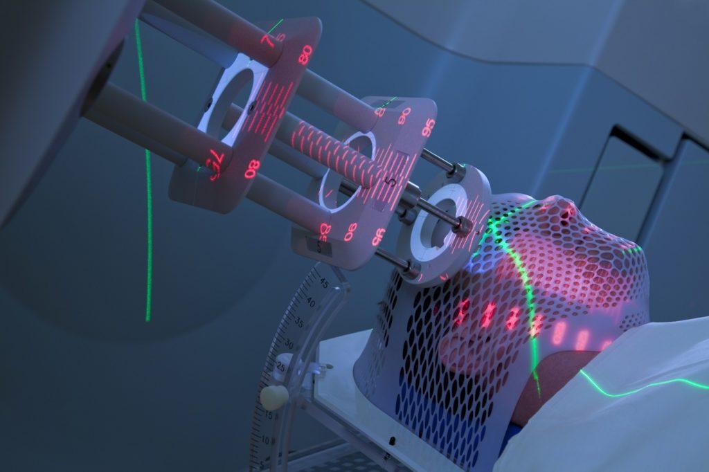 Лечение тимомегалии с помощью радиотерапии