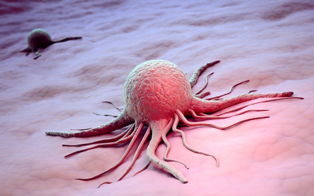 Рак лимфоузлов: симптомы и признаки онкологии, причины, методы лечения и диагностики