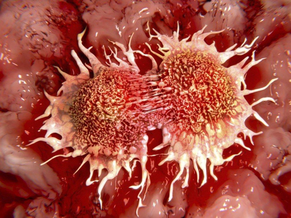 Рак лимфатической системы: симптомы и прогноз для жизни