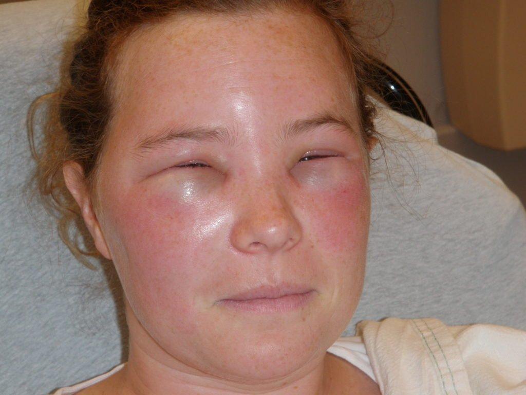 Симптомы воспаления лимфоузлов на лице