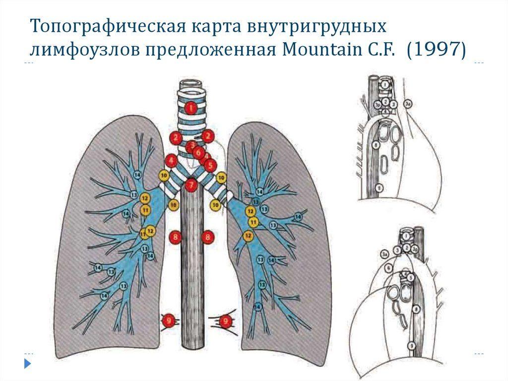 Внутригрудные лимфоузлы