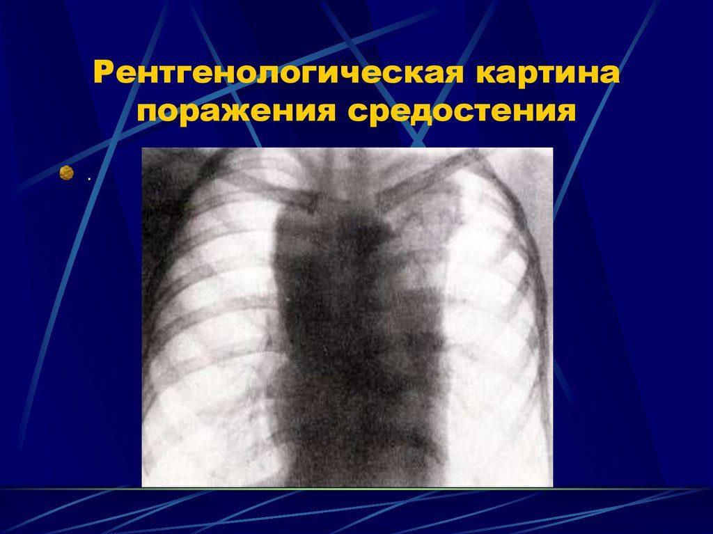 Лимфогранулематоз средостения