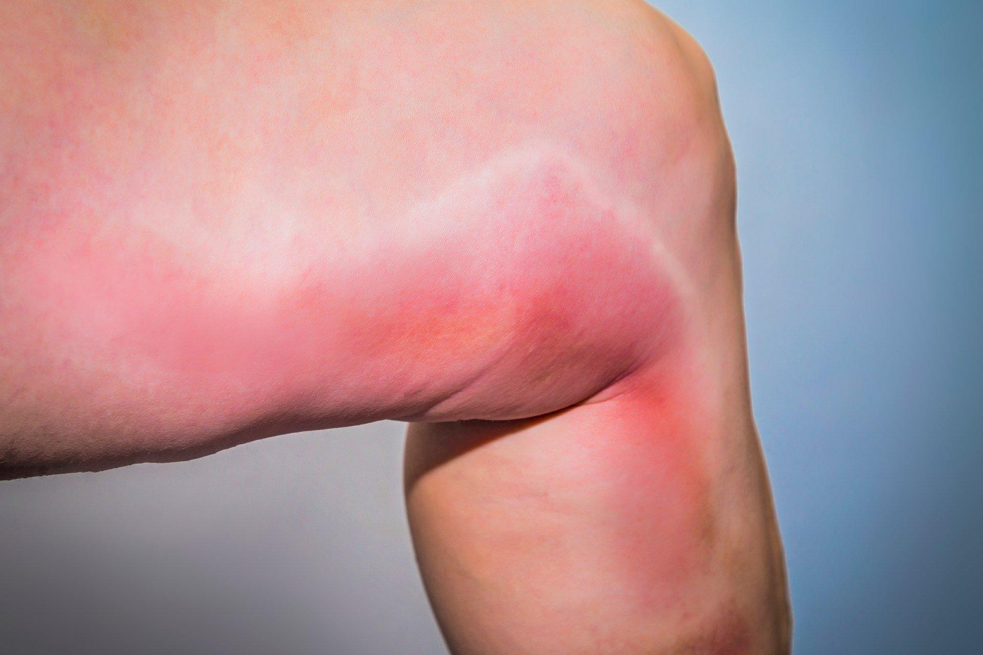 Возможные осложнения при лимфодиссекции