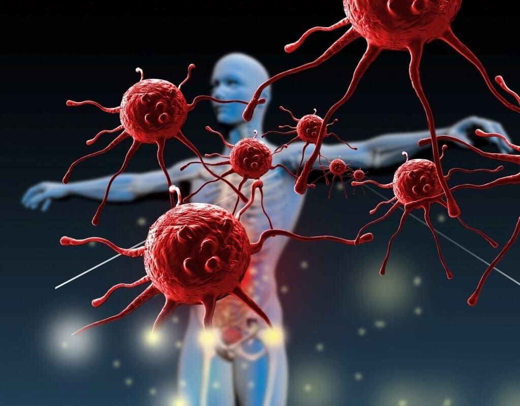 Амилоидоз селезенки: причины возникновения и методы лечения