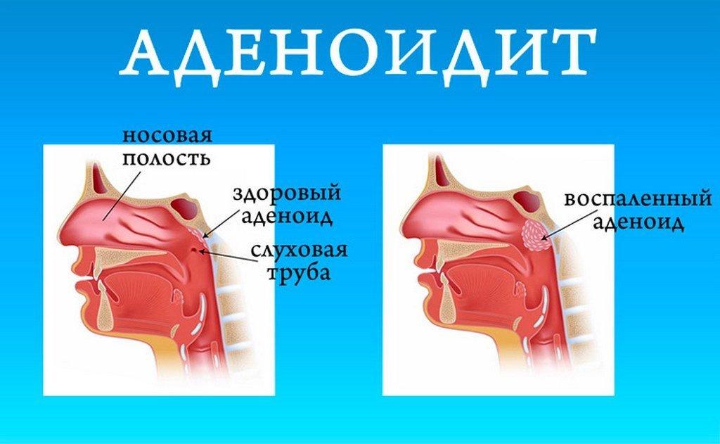Показания к удалению миндалин