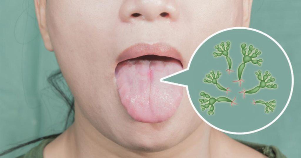Кандидоз горла: как проявляется молочница на миндалинах и как ее лечить