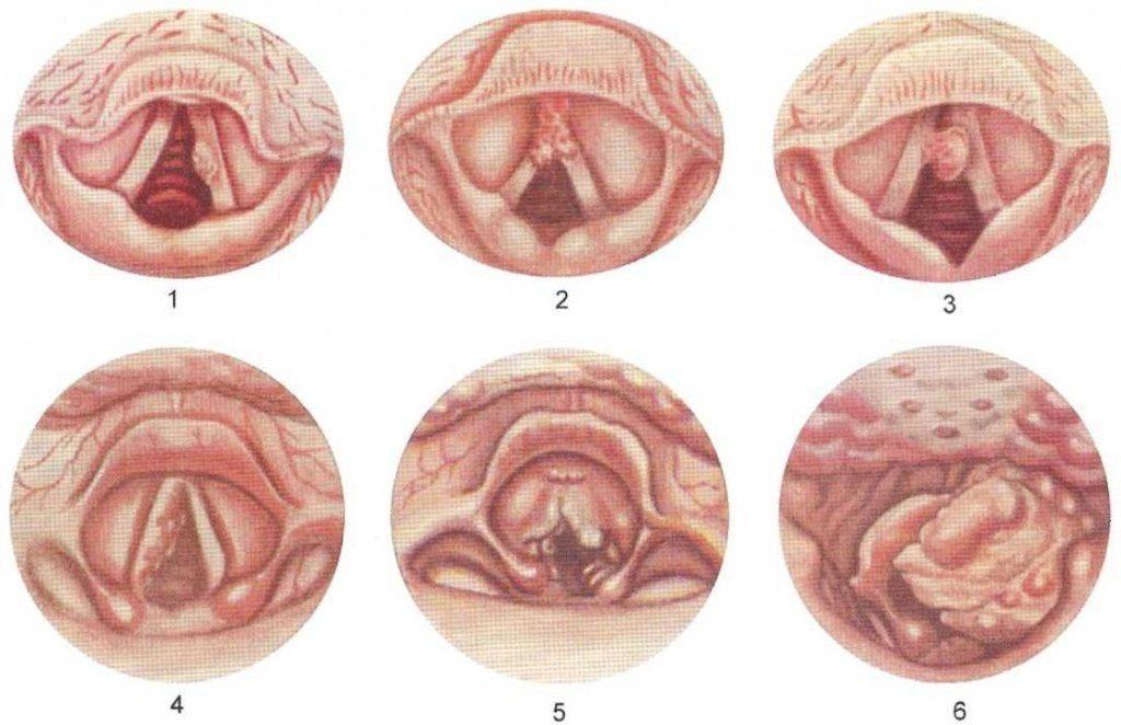 Злокачественная опухоль миндалин