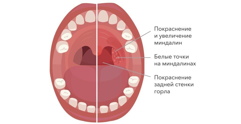 Неприятный запах изо рта из-за воспаления миндалин