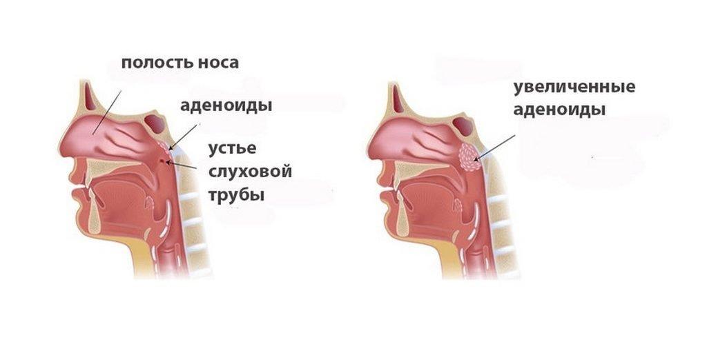 Стадии увеличения аденоидов