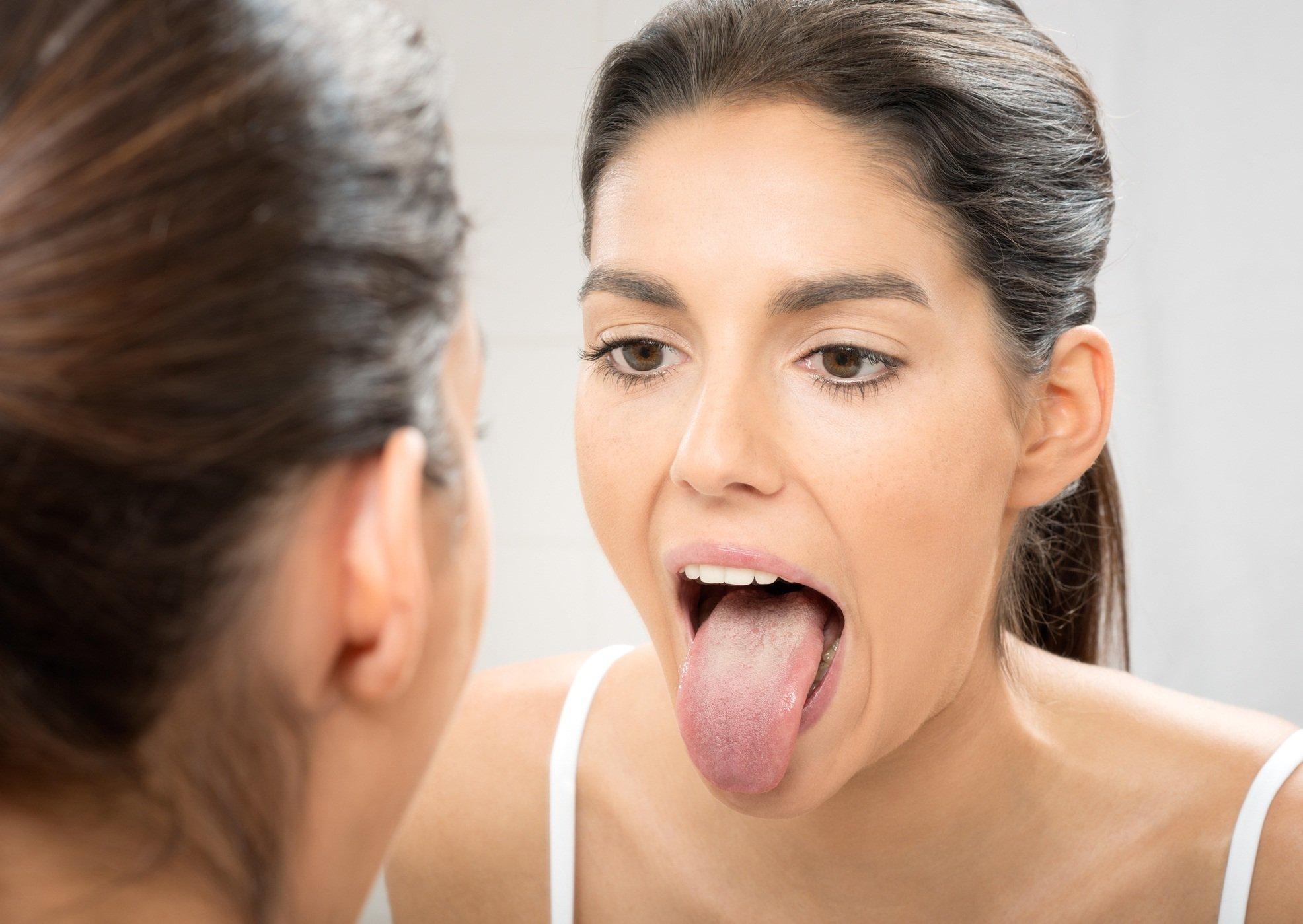 Миндалины во рту