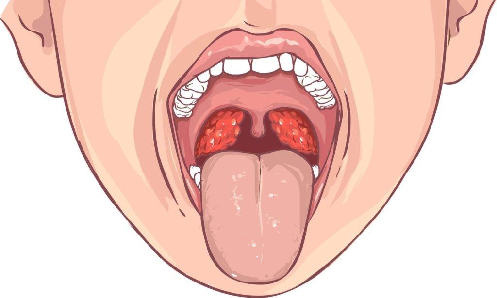 Показания к проведению тонзиллотомии