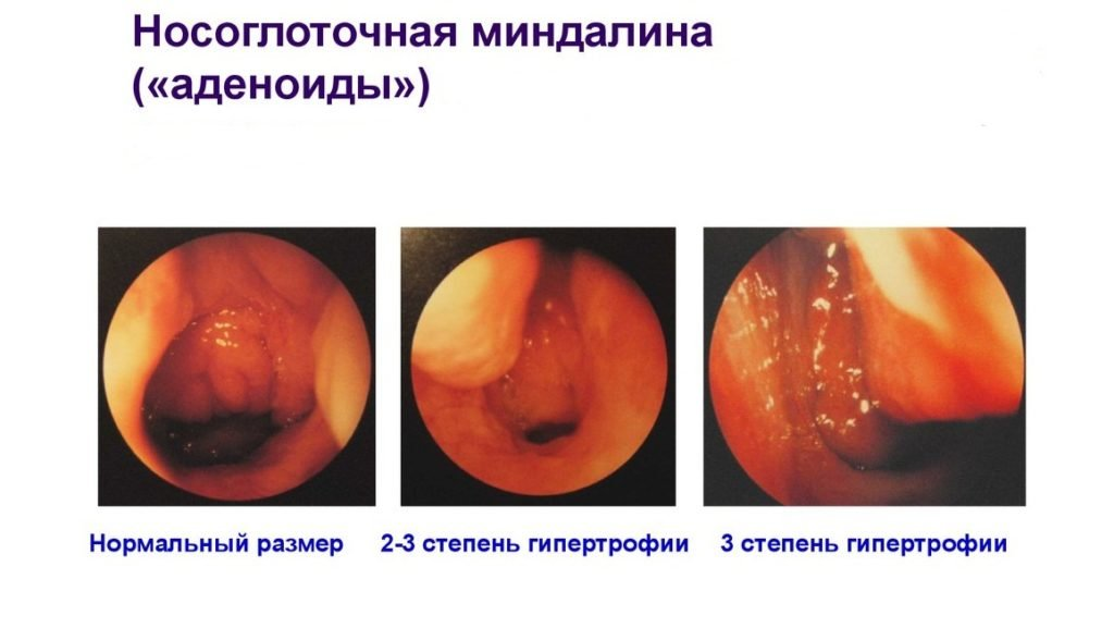 Формы и стадии аденоидита