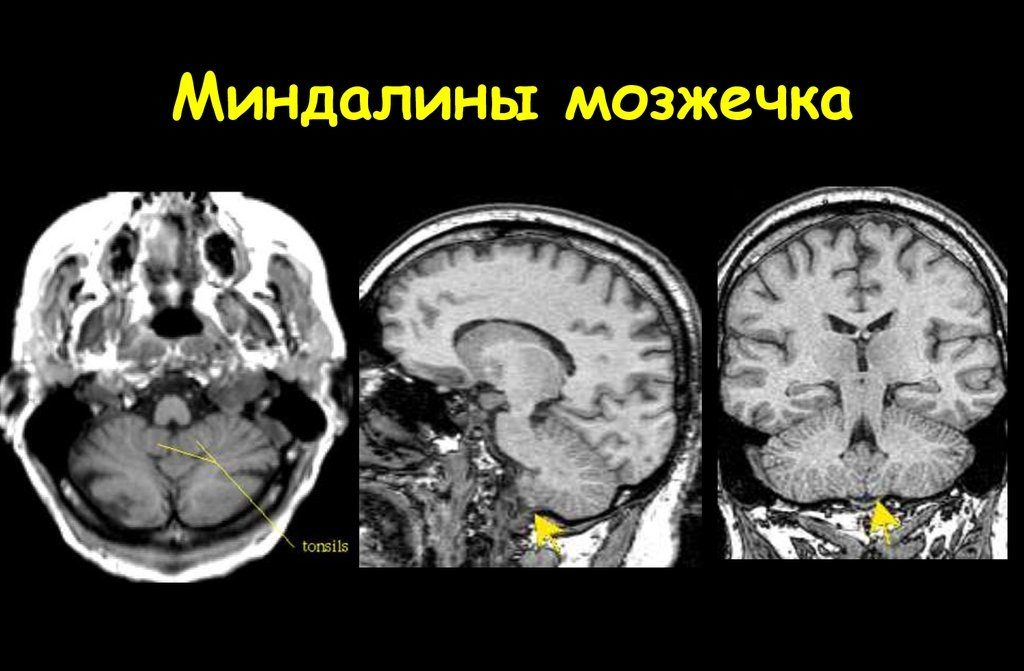 Расположение миндалин мозжечка