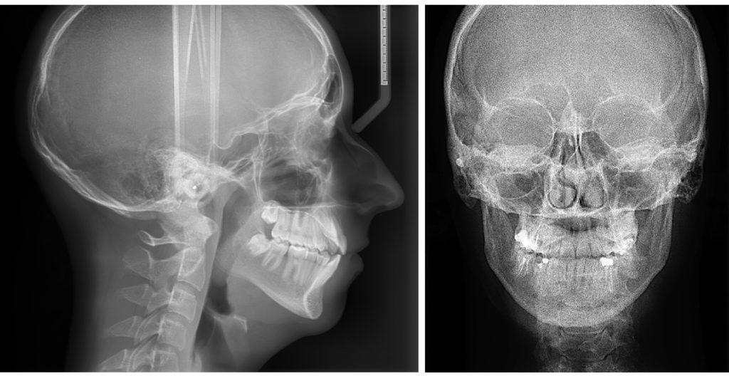 Диагностика гиперплазии миндалин