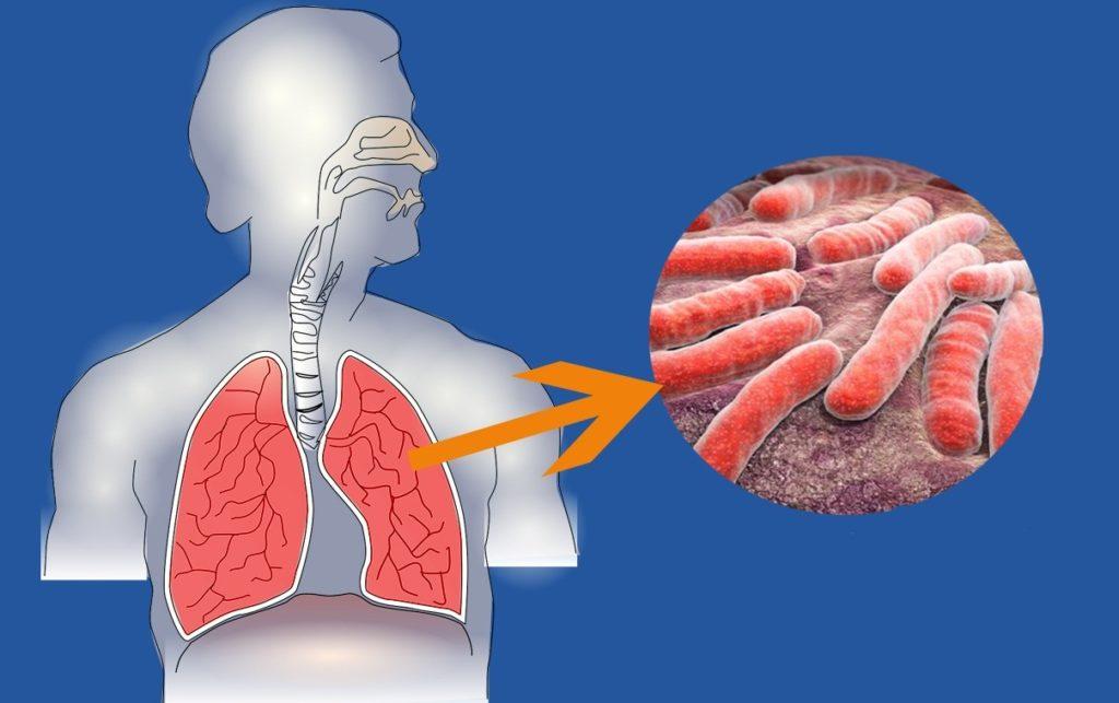 Возможные патологии грудного лимфатического протока