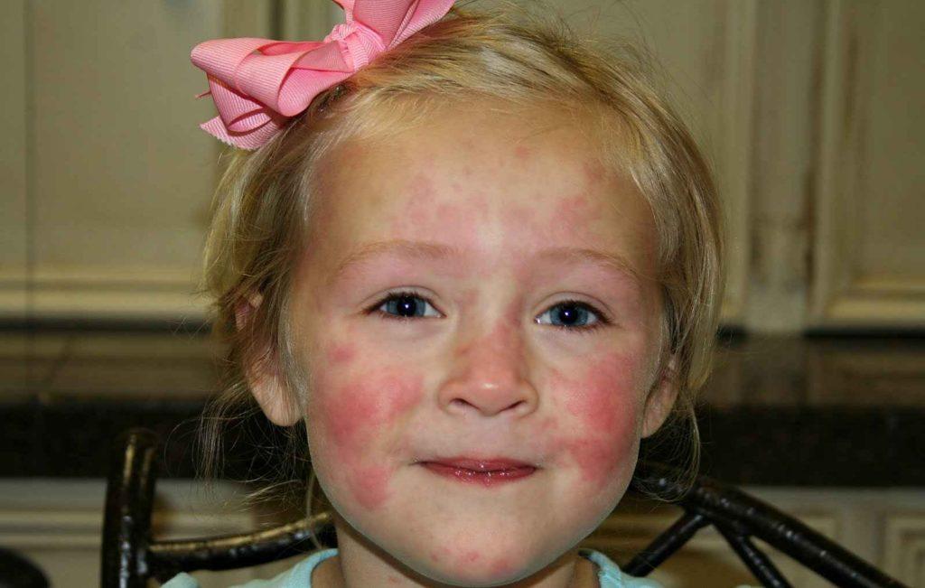 Побочные эффекты Лимфомиозота
