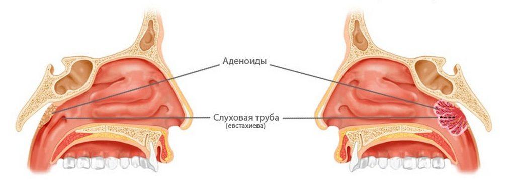 Причина насморка у детей при аденоидах