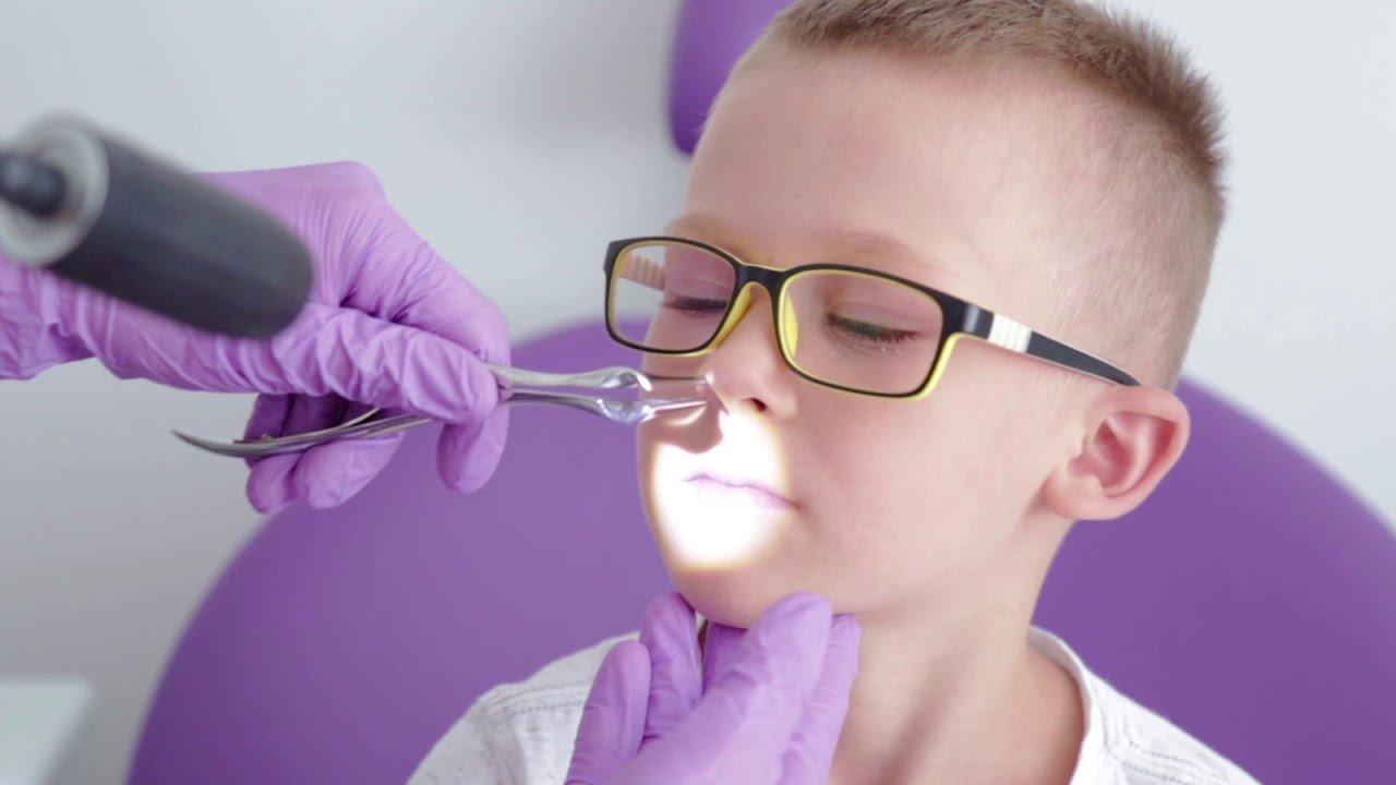 Аденоиды в горле фото у детей — Все о детях